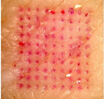 Dette billede har ingen alternativ tekst; filens navn er plaster-vaccine.png